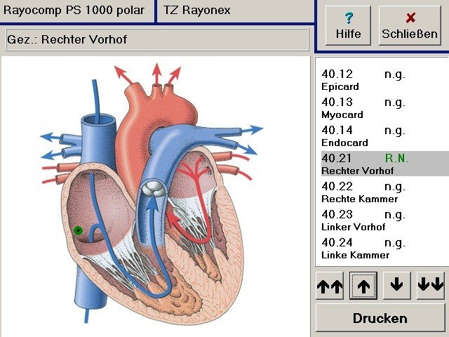Bioresonanz, zu Hause therapieren 2